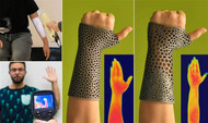 3D printed orthopaedic casts with improved thermal comfort