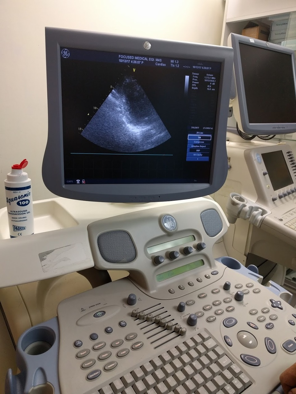 Used GE Vivid 7 Dimension Ultrasound