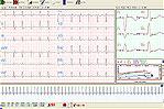 QRS Card- Stress Test Cardiology Suite
