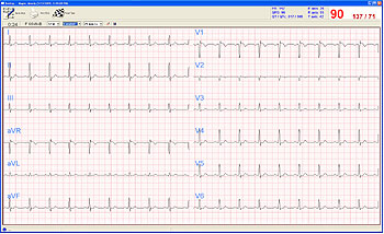PC Based EKG With Interpretation