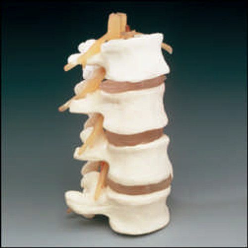 Anatomical models - Basic 4-part Lumbar Set