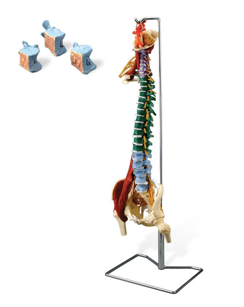 Muscle Spine With Disorders with Stand  2 Week Ship Time!!