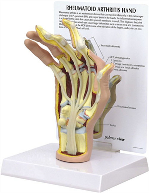 Rheumatiod Arthritis Hand