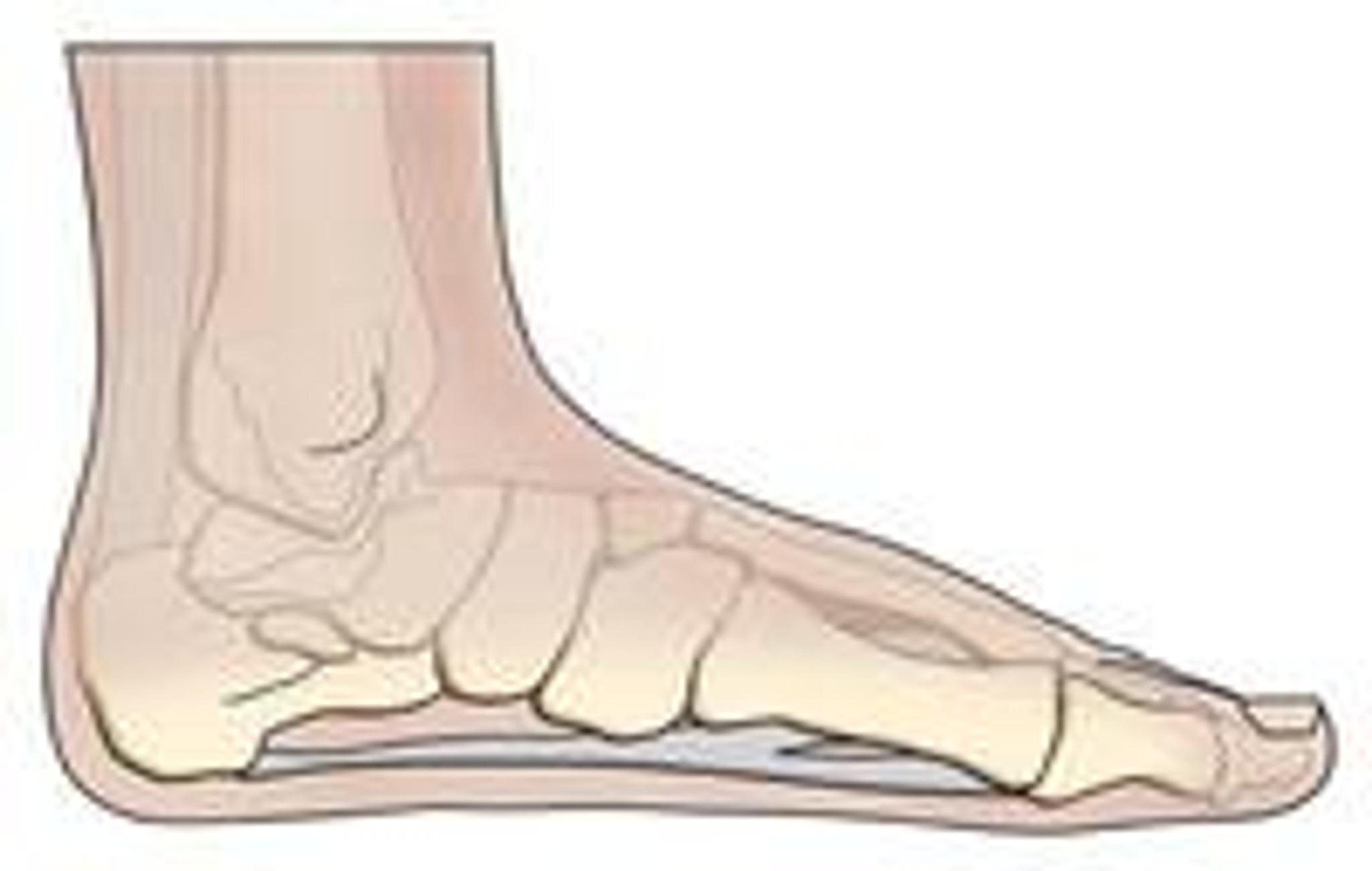 Flat Feet or Plantar Fasciitis