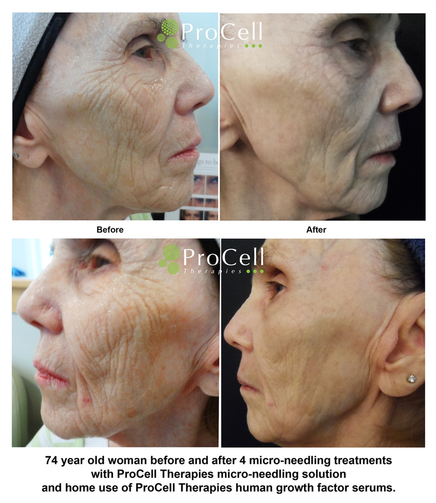 ProCell Treatment Kit for Microneedling call for pricing