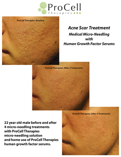 ProCell Treatment Kit for Microneedling