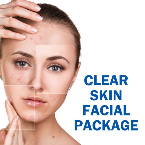 Clear Skin Facial Package