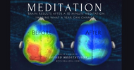 What is the Benefits of Guided Mediations?