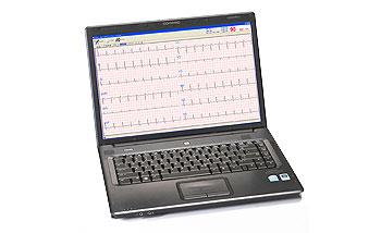 PC Based EKG With Interpretation