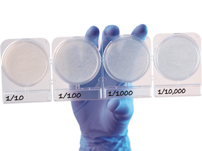 Compact Dry YMR (Yeast Mold Rapid) 100 trays per box by Hardy Diagnostics.