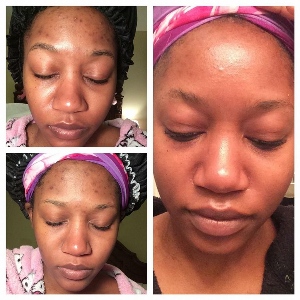 Daily Pore Treatment Toner