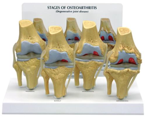 4 Stage Osteoarthritis Knee  Degeneration model