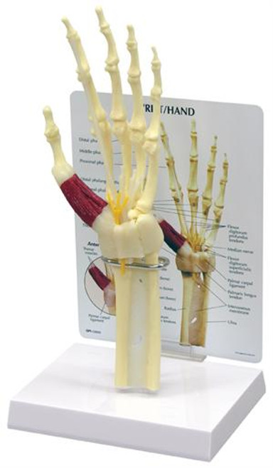 Wrist and Hand Model-Carpal Tunnel Syndrome Model