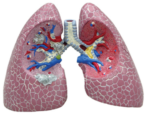 Lung Cancer Model