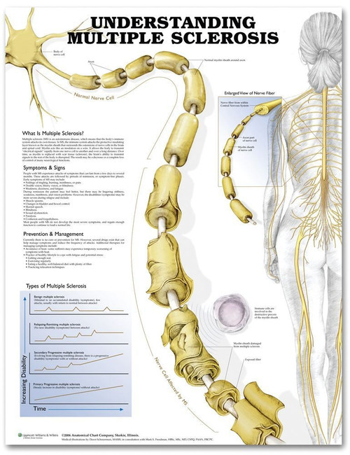 Understanding Multiple Sclerosis Anatomical Chart