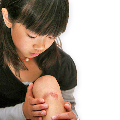 Homeopathy For Skin Wounds Homeopathy Works