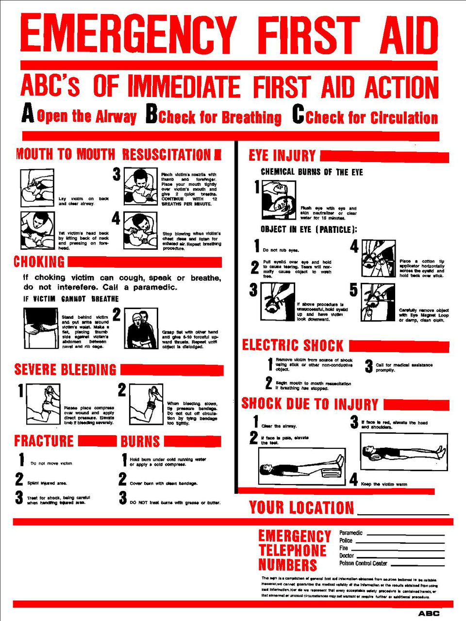 Sign Abc S Emergency First Aid 18in X 24in Emissions