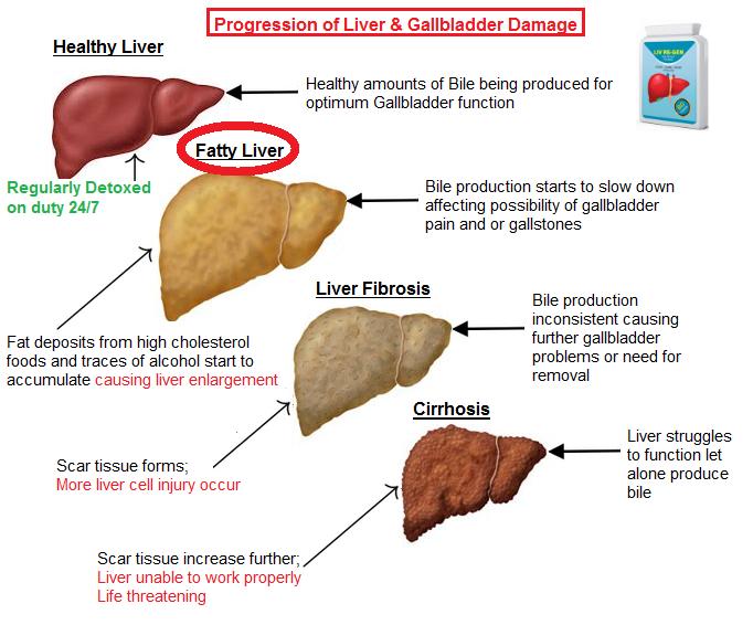 fatty-liver.png