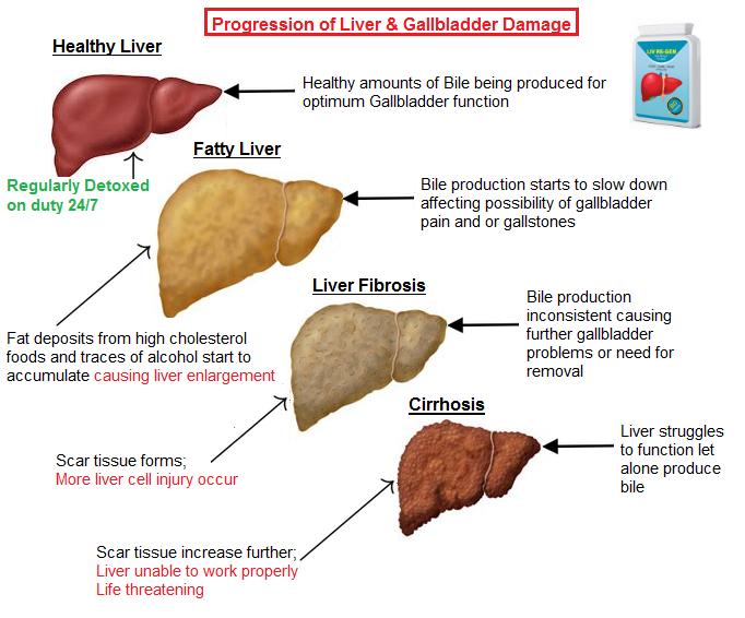 gallbladder-bile.png