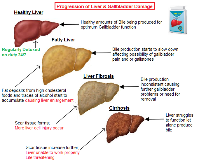 Liv Re Gen Strong Liver Gallbladder Detox Cleanse Care Repair