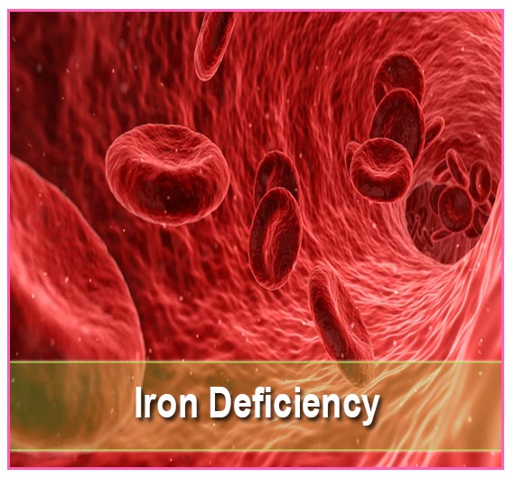 Find Iron Deficiency Supplements on Health Palace
