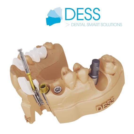 DESS Global Catalog