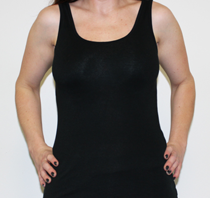 Corset shaping example