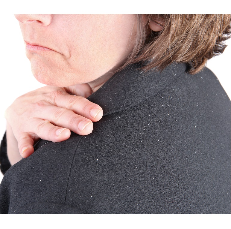 Dandruff Causes and Treatments