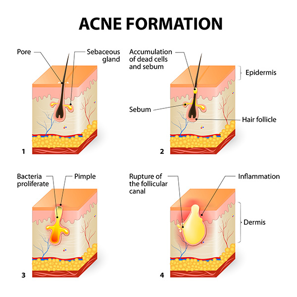 acneformation.jpg