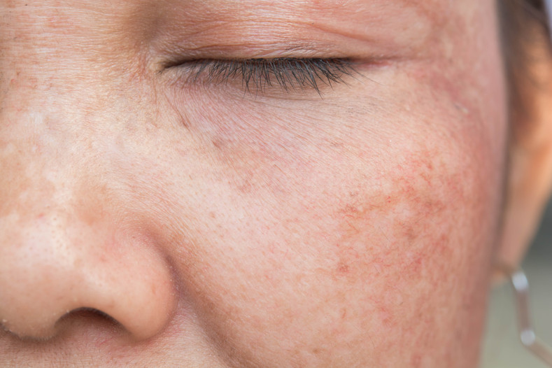 Hyperpigmentation: What Causes It and Treatment Options