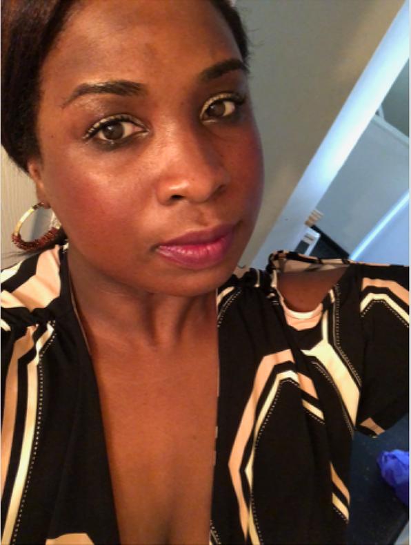 Customer Testimonial: How Marie Won the Hyperpigmentation Battle