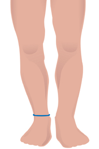 m-ankle.jpg