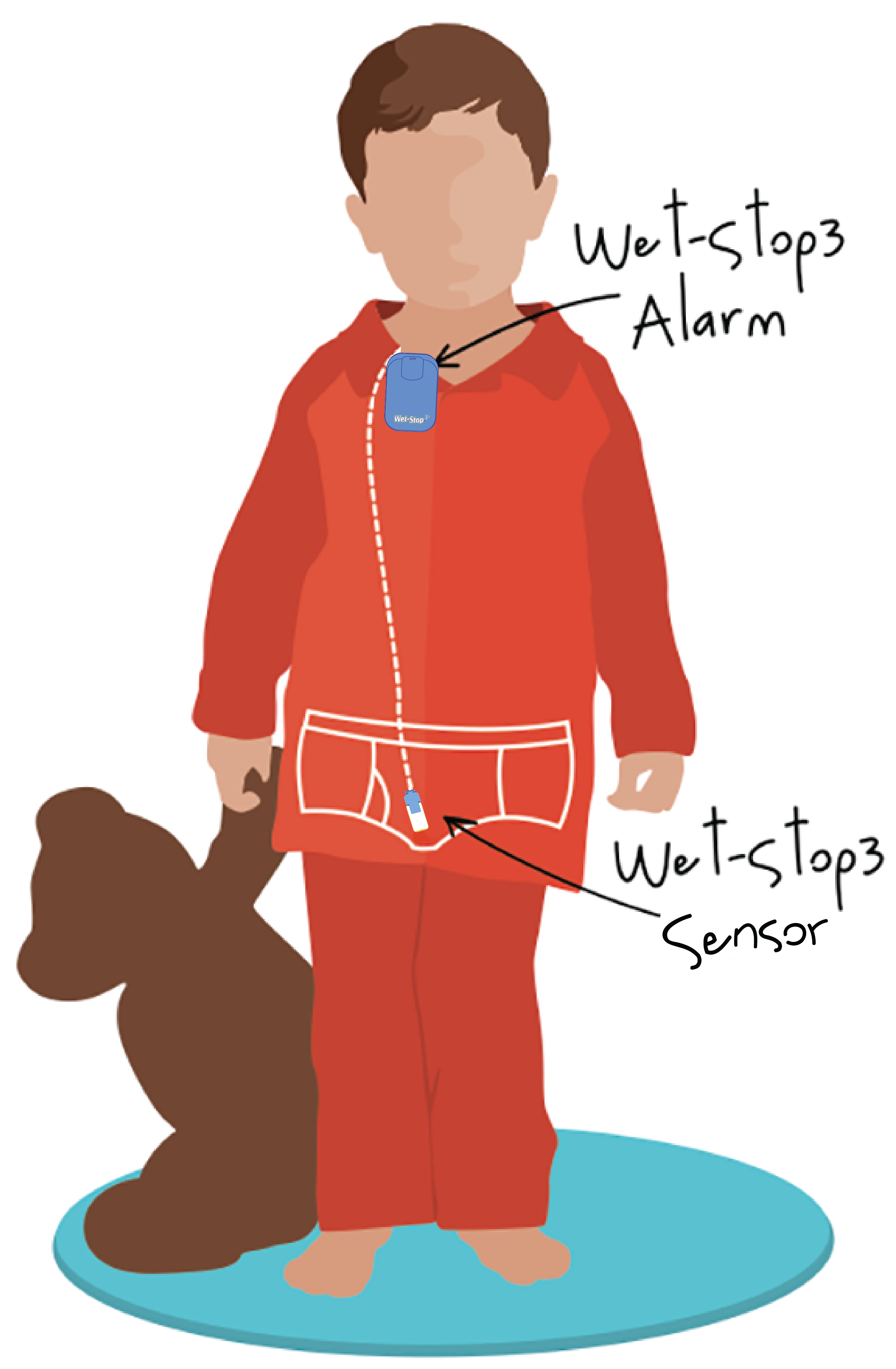 Illustration of proper placement of the Wet-Stop 3+ enuresis alarm (for bedwetting); attach the alarm unit at the neckline, run the cord underneath the pajama top and bottom, and attach on the outside of the underwear, if a boy, inside the fly of underwear, at the point where urine will first appear - not touching the skin.