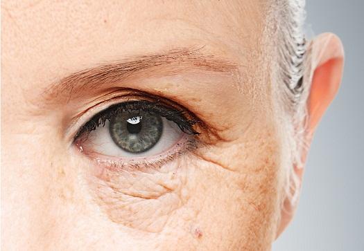 wrinkles-eye.jpg