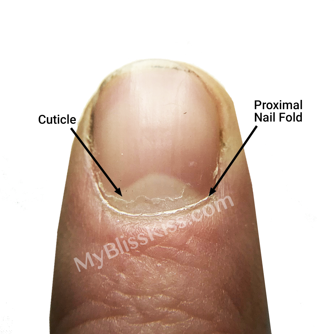cuticle-proximal-fold-bk-watermark.png